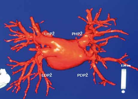 Rekonstrukce levé síně a plicních žil počítačovou tomografií.