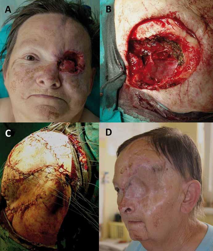 Radikální orbitektomie (B) pro recidivující dlaždicobuněčný karcinom očnice (A)  s lalokovou plastikou defektu (C) a stav po sedmi letech od operace (D).