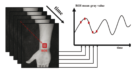 Fig. 2: Schematic of post-processing of the PPG time signals from a PPGI sequence.