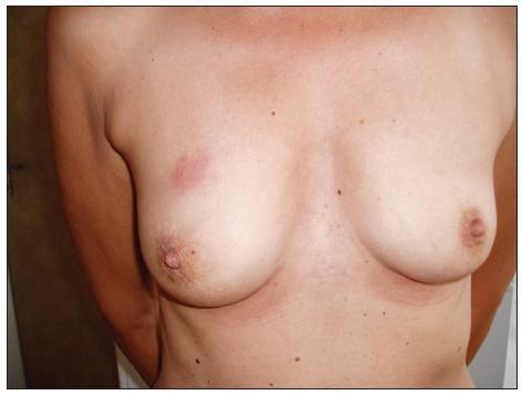 Nález na pravém prsu Fig. 9. The right breast finding