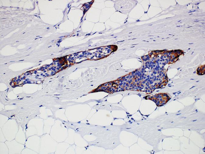 Imunohistochemický průkaz EMA (epiteliální membránový antigen) v meningoteliálních buňkách