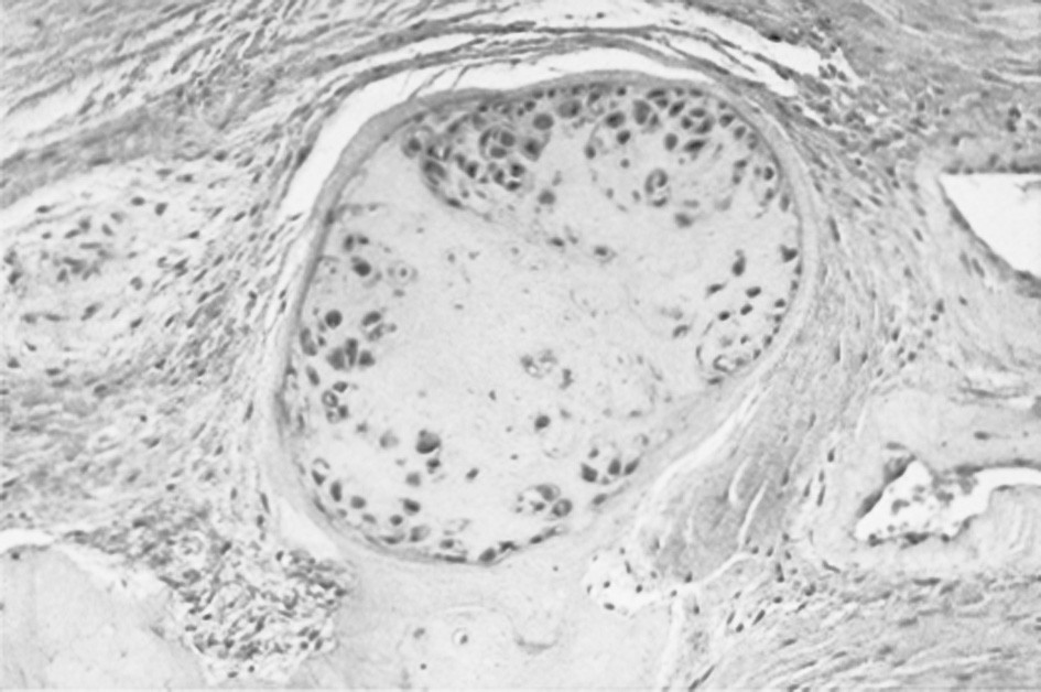 Histologie synoviální membrány: Zcela ojediněle nález připomíná změny typické pro primární synoviální chondromatózu. V synoviální membráně jsou ojedinělá ostře ohraničena ložiska ostrůvků chrupavky.