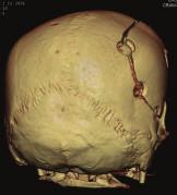 Přiložená kostní ploténka po ústupu edému mozku.