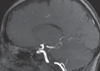 Multiplicitné segmentárne stenózy na v priebehu a. cerebri posterior l.dx. na MRI-angiograme.