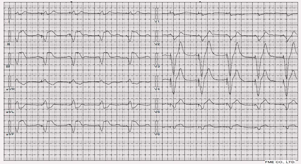 Akutní infarkt myokardu u pacient se stimulovaným QRS komplexem (Ve svodech nad dolní stěnou najdeme ST elevace, ve svodu V1 a V2 najdeme ST deprese).