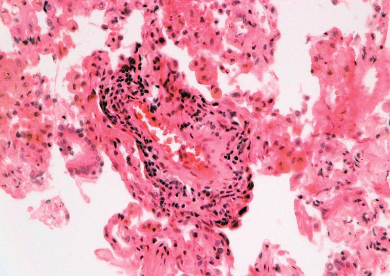 Mírná akutní celulární rejekce, grade A2: perivaskulární infiltrát z aktivovaných lymfocytů, plazmocytoidních buněk a makrofágů (HE, x 400).