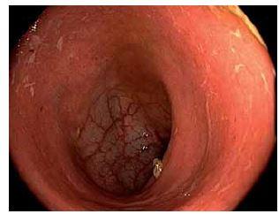 Proktitida, endoskopické Mayo subskore 2 – středně těžké postižení (zjevný erytém, absence podslizniční cévní kresby, křehká sliznice, eroze), ostrý přechod do normální sliznice c. sigmoideum. Fig. 1. Proctitis, Mayo UC Endoscopic Score 2 – Mild disease (erythema, decreased vascular pattern, mild friability), sharp border to normal mucosa in sigmoid colon.