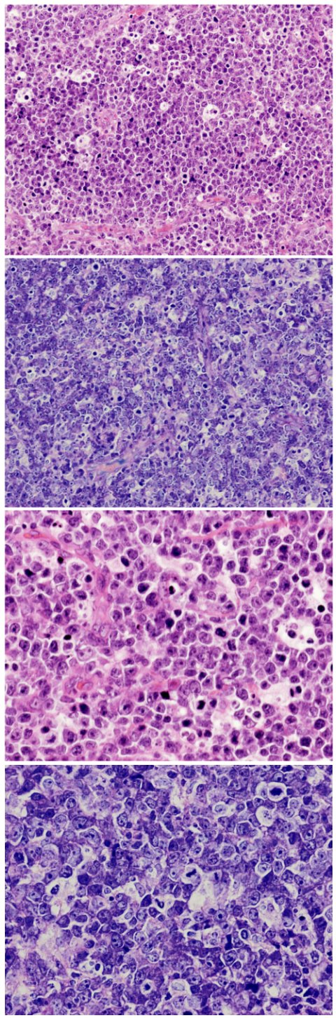 "Photomicrographs of a histological section showing a population of B-cell lymphoma of the Burkitt type arising in the pituitary gland – neoplastic lymphoid cells with pale macrophages forming the typical ""starry sky"" pattern (immunohistochemical stains not shown)