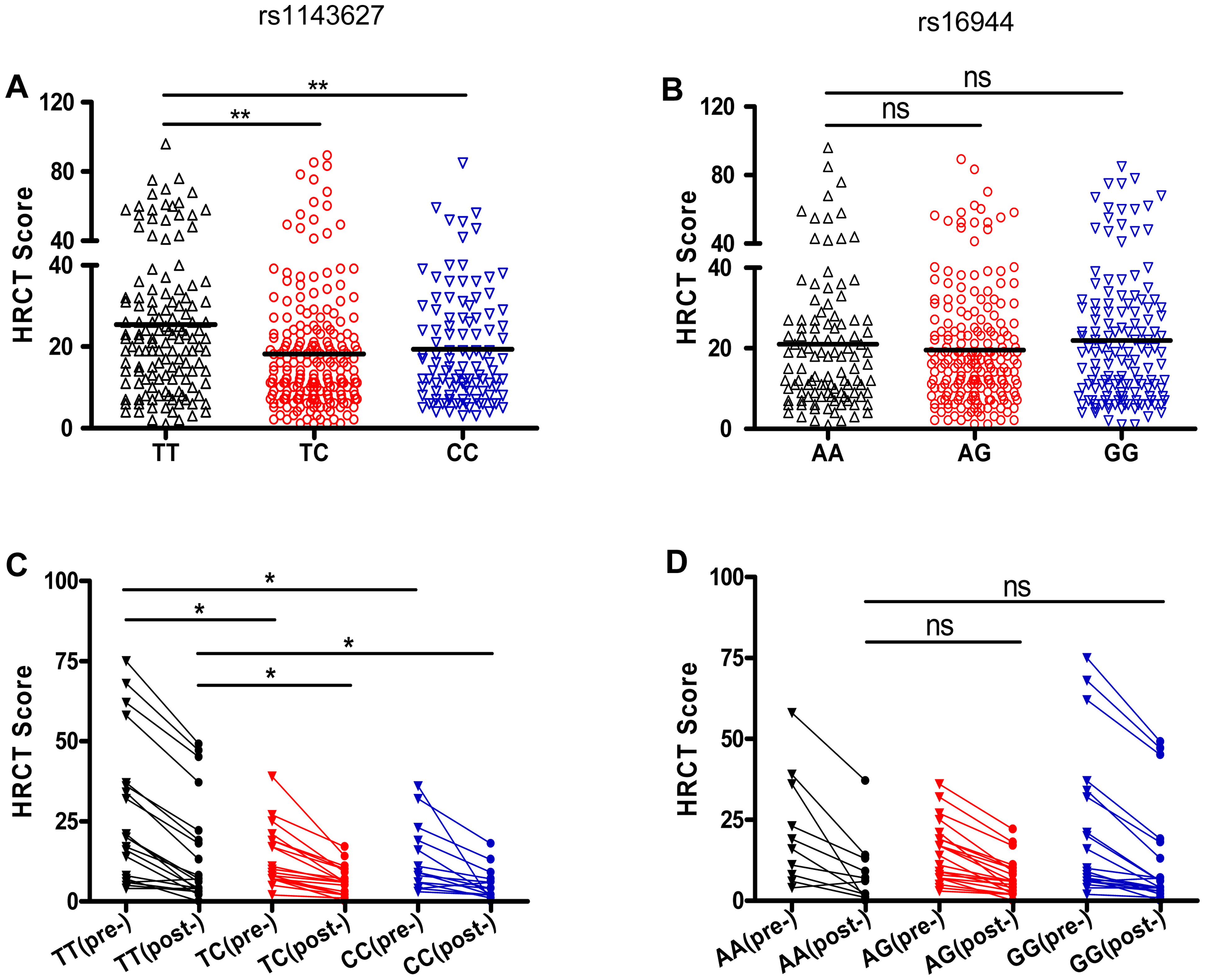 SNP rs1143627 is associated with the severity of pulmonary TB disease.