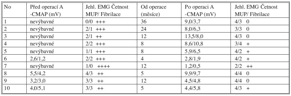 Elektromyografické vyšetření před operací a s odstupem (v měsících) po operaci. Amplituda sumačního svalového evokovaného potenciálu (A-CMAP) snímaná z m. supraspinatus a m. infraspinatus je vyjádřena v mV. Četnost akčních potenciálů motorických jednotek (MUP) je ve zdravém svalu 5 při maximální kontrakci. V tabulce je vyjádřena zlomkem (m. supraspinatus/m. infraspinatus). Četnost fibrilací (projev denervačního syndromu) je hodnocena sumačně pro svaly, a to podle stupnice 0 až ++++ Tab. 2. Electromyographic examination prior to the procedure and after (several months) the procedure. The compound muscle action potential amplitude (A-CMAP) recorded from the supraspinatus and the infraspinatus muscle is expressed in mV. During the maximum contraction of a healthy muscle 5 motor unit action potentials (MUP) have been recorded. In the table, the frequency is presented as a broken number (m. supraspinatus/m. infraspinatus). The frequency of fibrillations (a denervation syndrome sign) is assessed as a compound muscle measure, based on the 0 to ++++ scale.