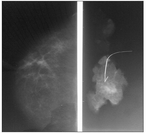 Rádiohistogram pri nehmatnej lézii so zavedeným vodičom Fig. 6. Radiohistogram in a nonpalpable lesion with a guide introduced into the tissue