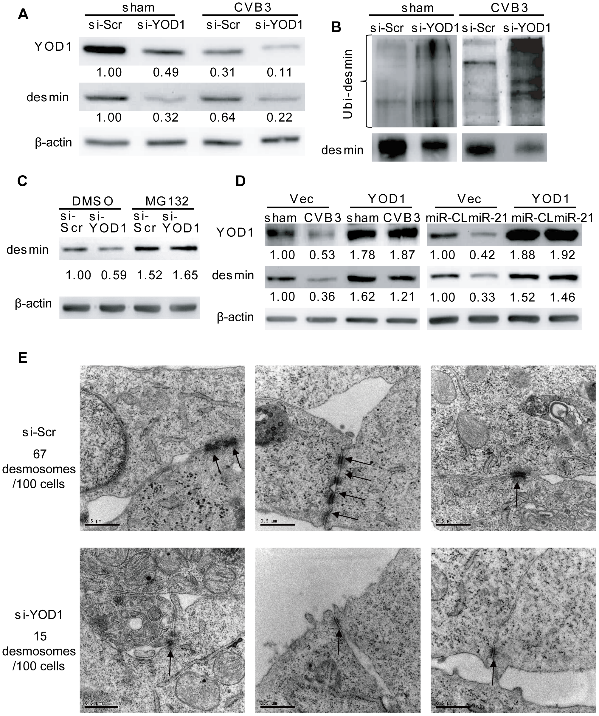 YOD1 regulates desmin degradation during CVB3 infection.