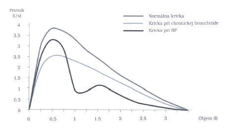 Krivka expiračného prietoku znázorňujúca vrcholové prietokové rýchlosti pri rôznych pľúcnych objemoch. Pri distálnej obštrukcii (astma, chronická bronchitída) je najviac ovplyvnený prietok pri nízkych objemoch, pri proximálnej obštrukcii (trachea) je ovplyvnený prietok pri vysokých objemoch
