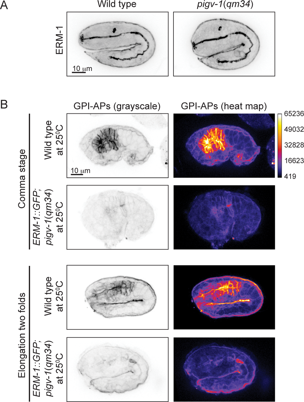 ERM-1 overexpression does not rescue GPI-AP biosynthesis in <i>pigv-1</i>(<i>qm34</i>).