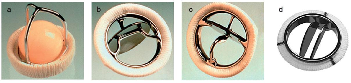 Příklady mechanických protéz a – Starr-Edwards caged-ball, b – Bjork-Shiley tilting disc, c – Medtronic Hall tilting disc, d – Medtronic Hall tilting disc