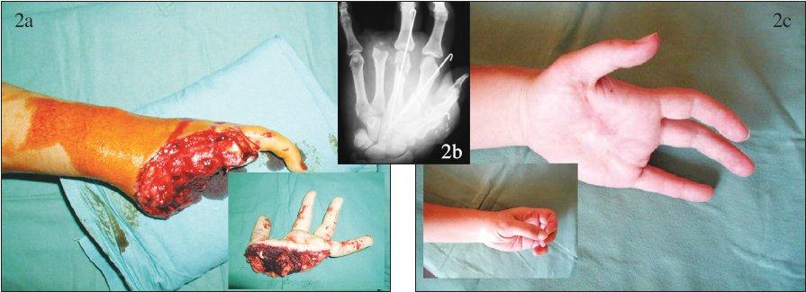 Replantace v oblasti dlaně: a – nález po úrazu s amputací ve dlani, b – pooperační RTG snímek, c – stav po replantaci. Fig. 2. Palm region replantation: a – amputation in the palm following the trauma, b – postoperative x-ray view, c – post- replantation condition.