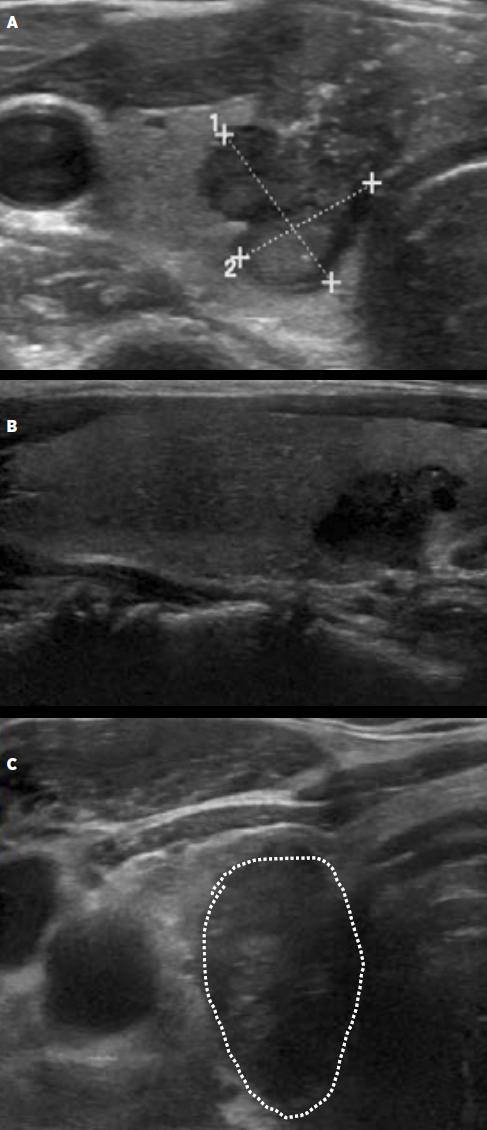 Příklady uzlů s vysokou suspekcí (A – solidní, hypoechogenní, nepravidelný tvar, tkáňové mikrokalcifikace, extratyreoidální invaze ventrálním směrem; B – solidní hypoechogenní, nepravidelný tvar, C – vyšší než širší v transverzální rovině).