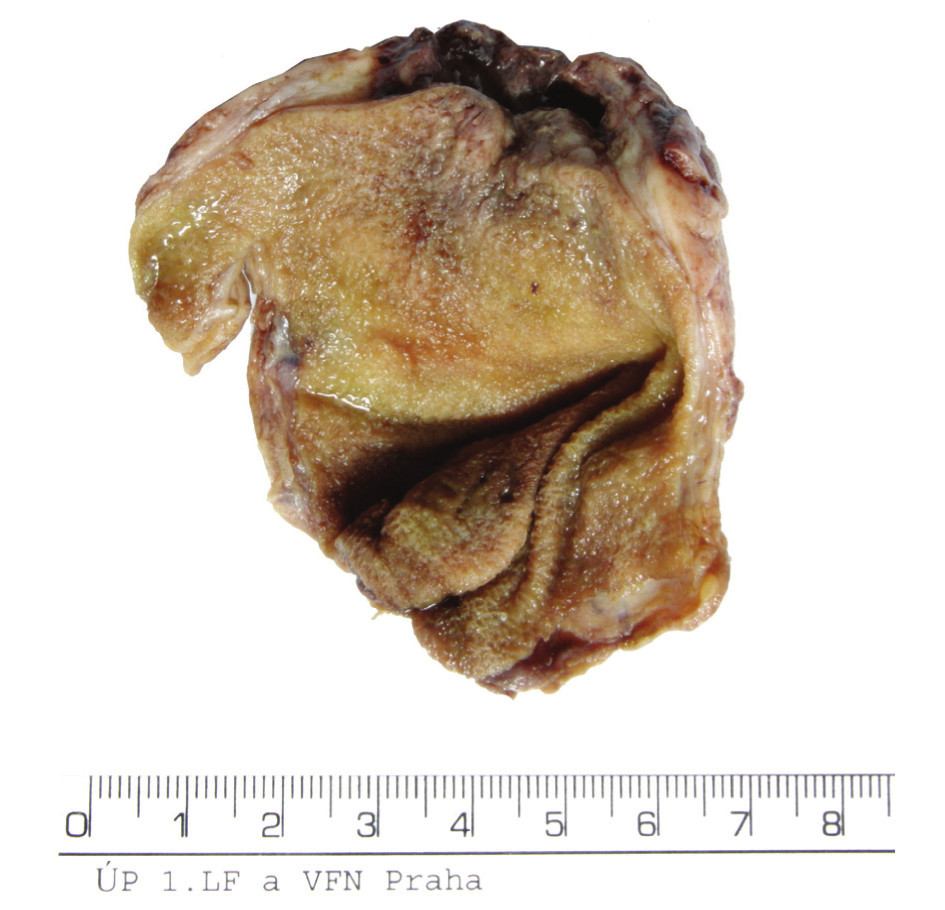 Preparát – fotografie celého žlučníku