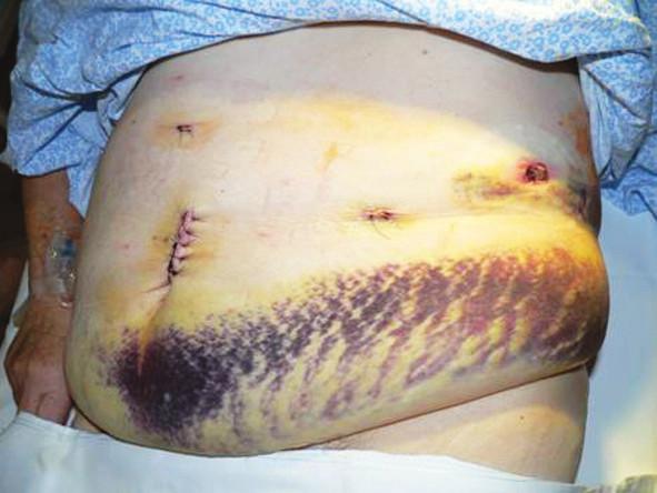 Komplikácia po distálnej pankreatektómii – veľkosť hematómu 41 cm, napriek štandardnej kontrole portov kamerou pred ukončením operácie port po extrakcii nejavil známky krvácania ani do brušnej dutiny ani do oblasti podkožia. Z obrázka je zrejmá aj telesná konštitúcia pacientky ako aj uloženie portov a drénu Fig. 10. A complication after distal pancreatectomy – the size of hematoma is 41cm. Despite a standard control of ports with a camera at the end of the procedure, the port showed no signs of intraabdominal or intradermal bleeding after extraction. The picture shows the patient's body constitution and the ports and drain locations