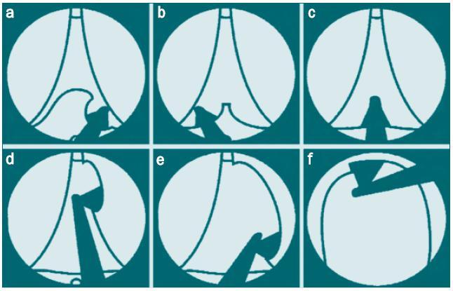 Schéma 1a, b, c, d, e, f. Cystoskopické zobrazení postupu GreenLight PVP  a., b., c. postup při vaporizaci středního laloku d., e. postup při vaporizaci levého laterálního laloku f. vaporizace anteriorní (dorzální) tkáně Cystoskop i laserové vlákno jsou otočeny o 180 ° tak, aby se nacházely před klenbou prostatické dutiny (Malek [7], Otištěno se svolením).
