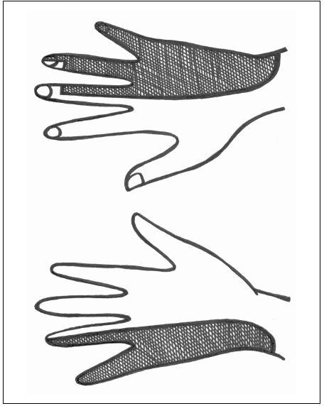 Senzitivní inervace n. ulnaris na dlani a dorzu ruky