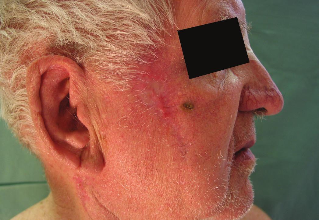 Bazocelulární karcinom pravé tváře