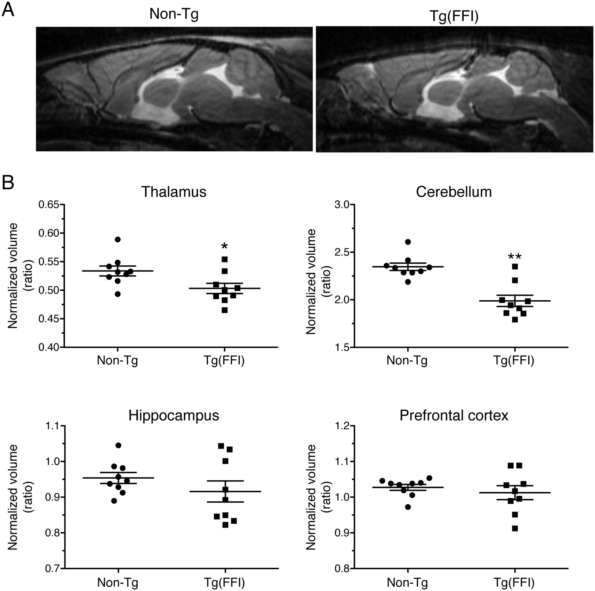 Tg(FFI) mice show thalamic and cerebellar atrophy.