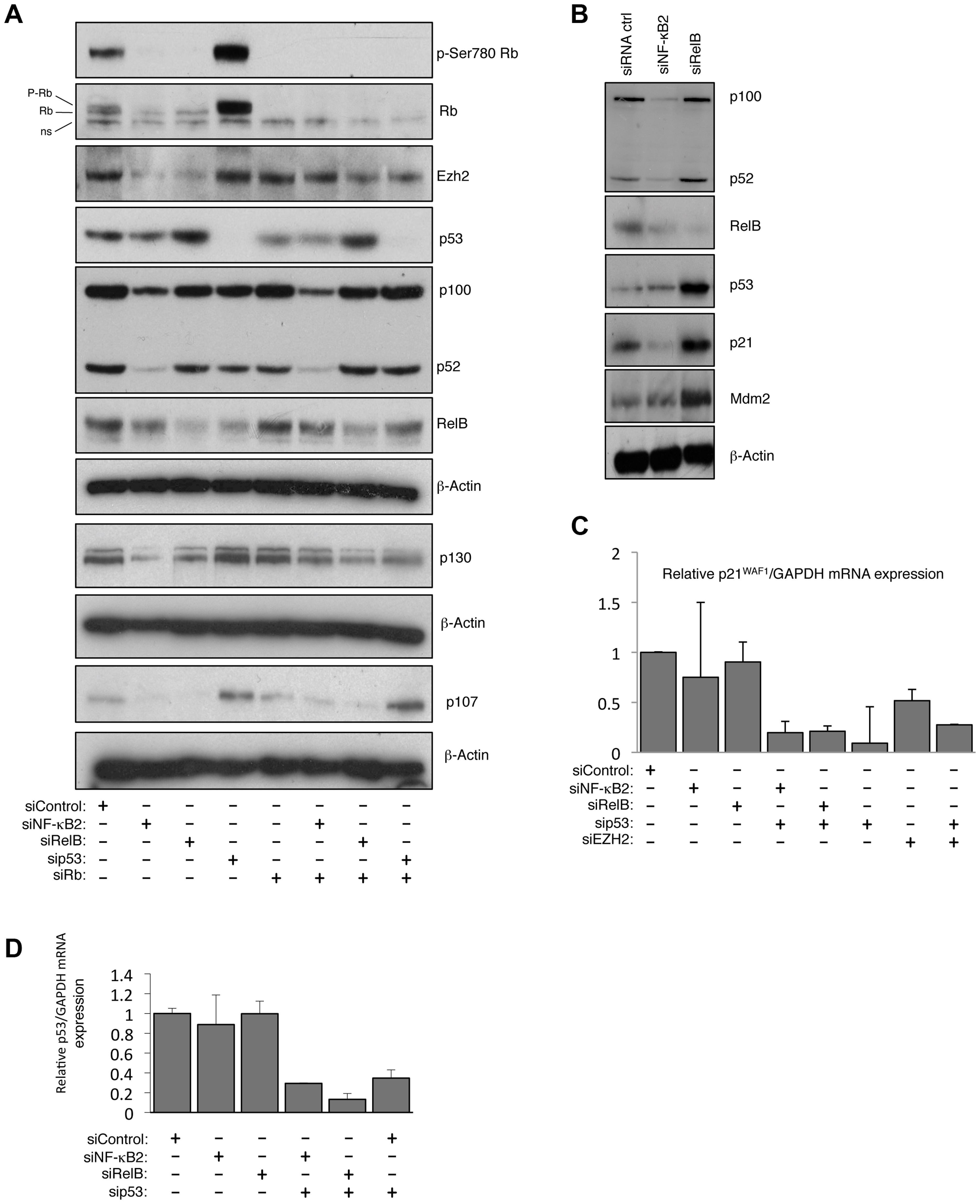 NF-κB2 and RelB regulate EZH2 in an Rb/E2F dependent manner.