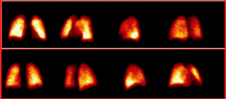 Perfuzní scintigramy plic provedené v 8 projekcích s normální homogenní distribucí plicní perfuze