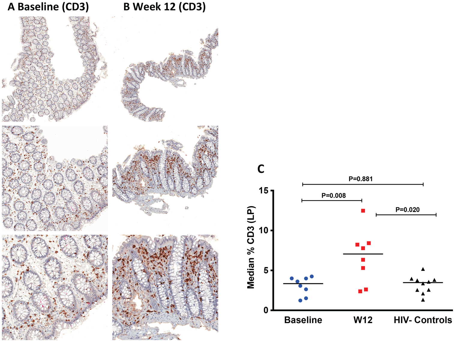Increase of CD3<sup>+</sup> cells in the lamina propria (LP) by immunohistochemistry at week 12 after r-hIL-7 administration.
