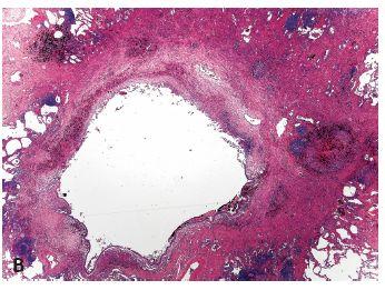 Obr. 2. Muž 52 let, rozpadový proces horním laloku levé plíce.
