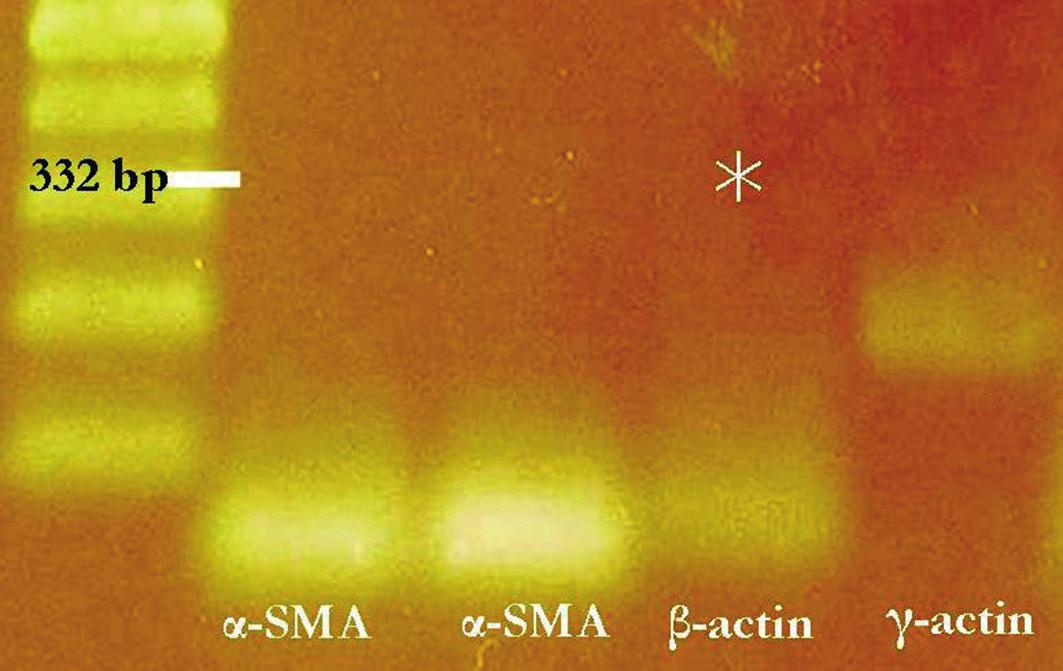 Genetické vyšetření změn s výstupem na gelu po elektroforéze.  U pacienta byly ve vzorku izolované RNA diagnostikovány PCR produkty genu pro alpha a gama-aktin. PCR produkt genu pro beta aktin není přítomen (šipka v oblasti PCR produktu 332 bp beta aktinu), hvězdičkou označena absence bendu beta aktinu, je diagnostikována přestavba (bodová mutace) genu pro β-aktin.