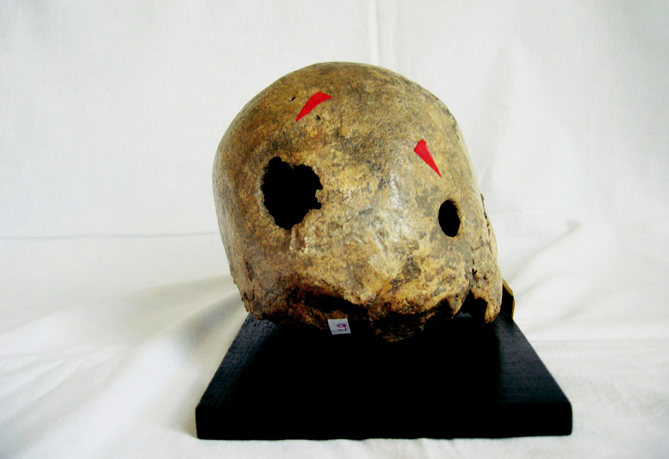 Fig. 1. Skull with two trephination holes (Smolnice, North-West Bohemia