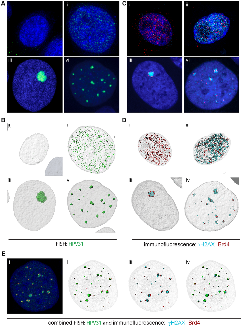 Brd4 surrounds replication foci in differentiating cells harboring HPV31 genomes.