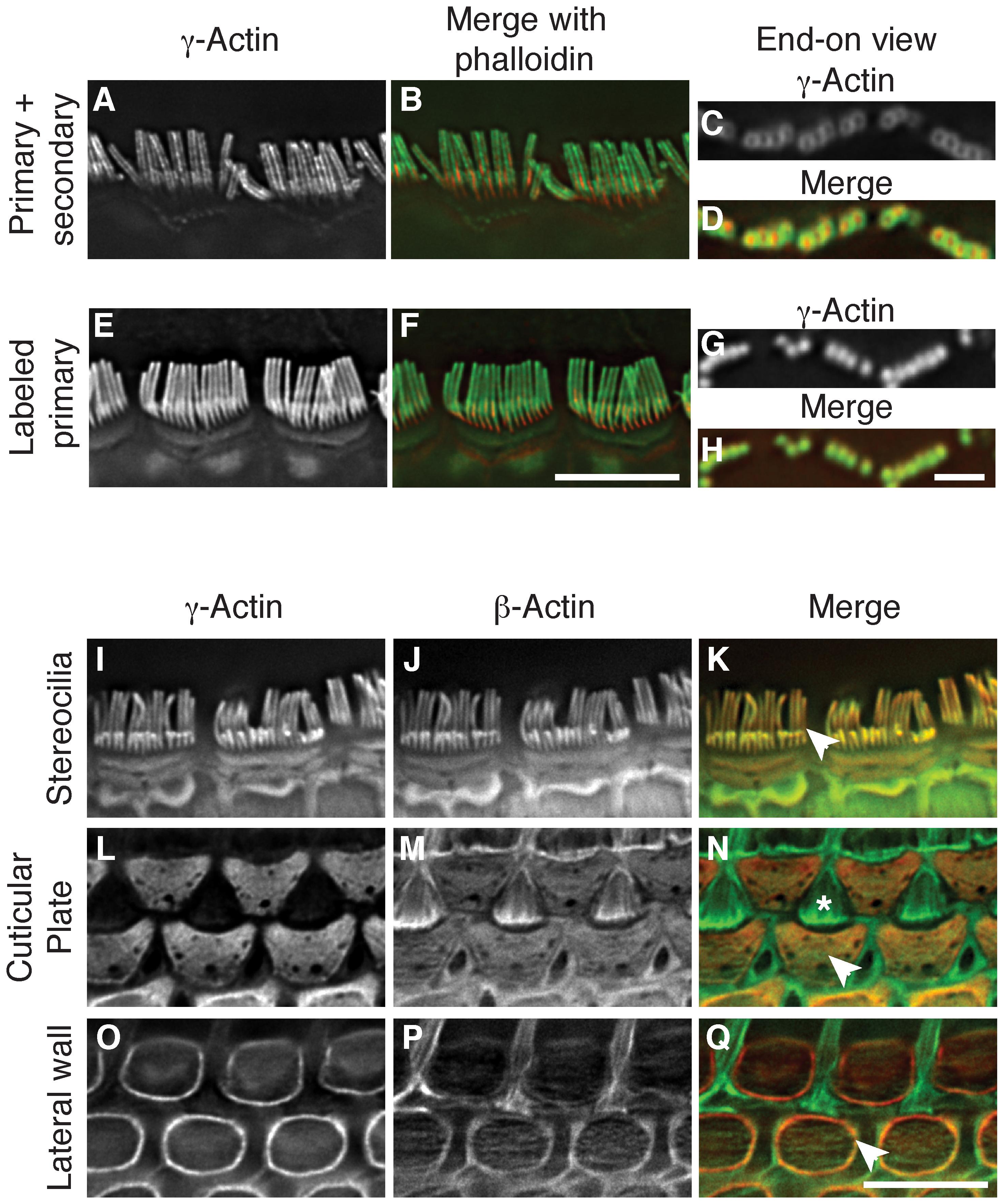 β-actin and γ-actin colocalize in hair cells.