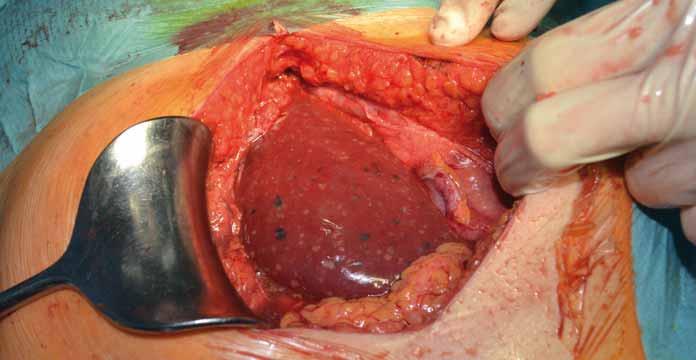Alveolárna echinokokóza pravého laloka pečene. Makroskopicky viditeľná ako biele a tmavé body na povrchu pečene. Fig. 3. Alveolar echinococcosis of the right lobe of the liver. Macroscopically visible as white and dark spots on the surface of the liver.