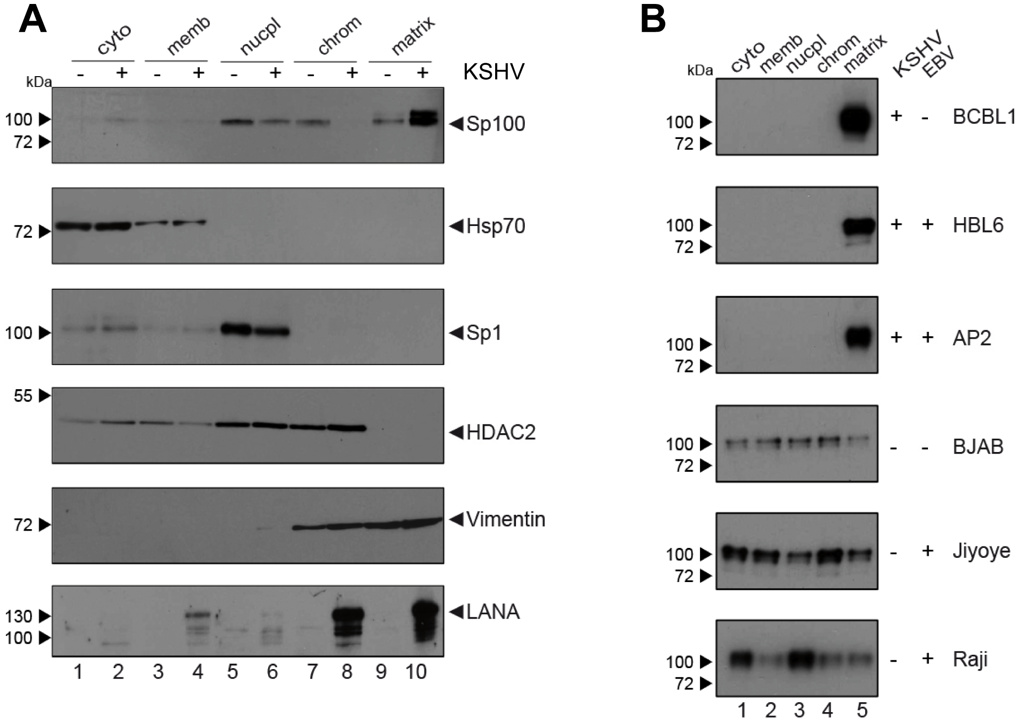 Sp100 accumulates in the insoluble matrix upon <i>de novo</i> infection and in PEL-derived B-cell lines.
