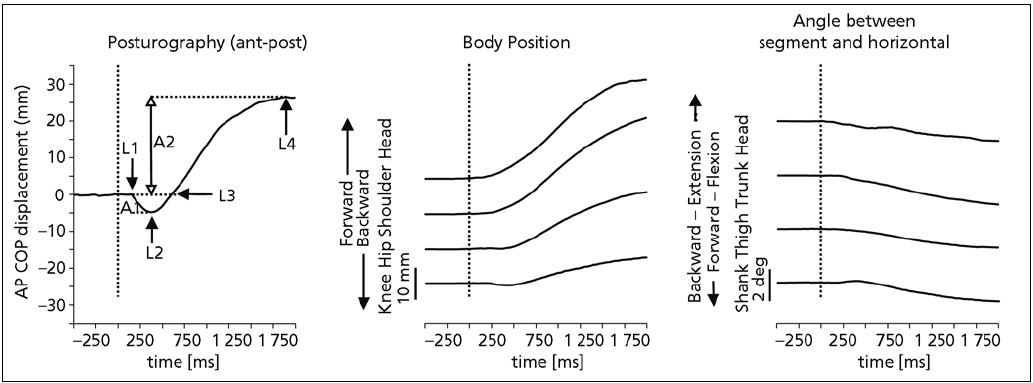 Fig. 1. Patterns of postural changes during neck vibration. 