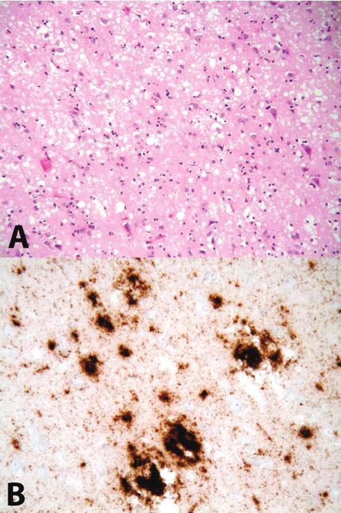 A. Obraz spongiformní dystrofie (spongióza, glióza, úbytek neuronů) Barveno hematoxylinem-eosinem, zvětšení 200x; B imunohistochemická reakce znázorňující depozita PrP<sup>res</sup>, použita protilátka 6H4, zvětšení 400x Fig. 1 A Spongiform dystrophy (spongiosis, gliosis, neuronal loss), hematoxylin-eosin stain, 200x magnification; B immunohistochemical detection of PrP<sup>res</sup> deposits, anti-PrP anibody 6H4 used, 400x magnification