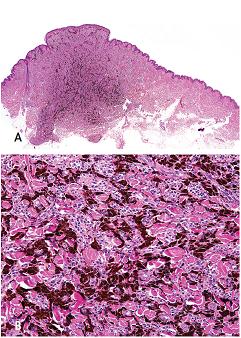 """Epiteloidní modrý névus složený ze silně pigmentovaných polygonálnich """"epiteloidních"""" melanocytů oddělených snopci kolagenu tvořící tzv. šachovnicový obraz. Barveno hematoxylinem eozinem (A, zvětšení 12,5x; B, zvětšení 200x)."""