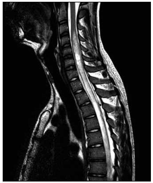 T2 vážená sekvence – patrný posun patologického signálu rostrálně – zde do výše obratle C3.