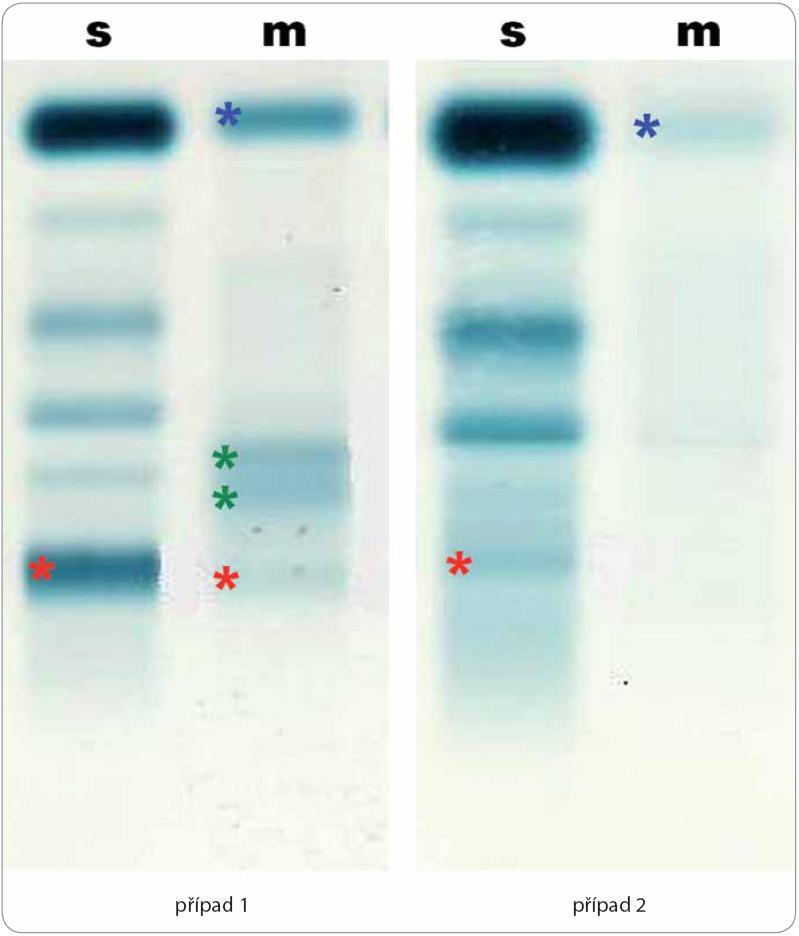 Elektroforéza séra (s) a moči (m) u dvou pacientů demonstrující rozmanitost nálezů u Schnitzler-syndromu.