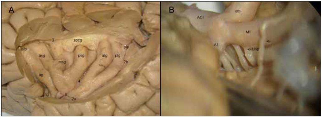 "Obr. 1a. Gyrifikace inzuly po odstranění operkula. asg, amg, psg – gyrus insulae brevis anterior, medius et posterior; alg, plg – gyrus insulae longus anterior et posterior; 1 – sulcus periinsularis anterior, 2 – sulcus periinsularis inferior a, pars horizontalis b, pars verticalis; 3 – sulcus periinsularis superior; 4 – sulcus centralis insulae, gt – gyrus transversus, ag – gyrus accessorius, spcg – subprecentrální gyrus. Obr. 1b. Jednotlivý odstup laterálních lentikulostriatických perforátorů (Llsp), ""early temporal branch"" z M1 (etb), drobná větvička z M1 do frontorbitální kůry (šipka)."