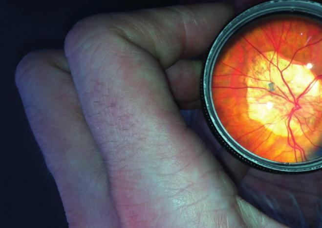 Sítnice 24leté pacientky s myopickou degenerací zadního pólu levého oka před plánovanou operací strabismu.