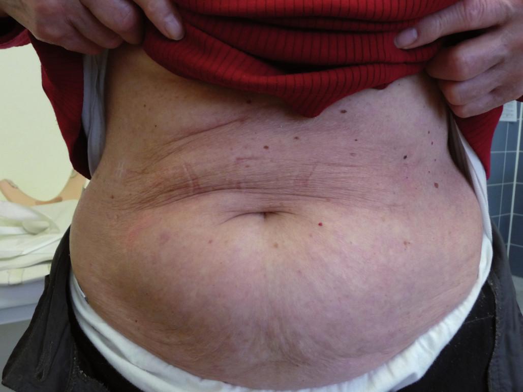 Kůže po léčbě IgA pemfigu po léčbě bortezomibem.