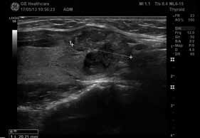 Papilární karcinom v pravém laloku štítné žlázy podélný řez (zdroj: archiv autora)