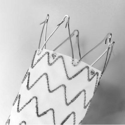 Hrdlo stentgraftu s transrenálním kotvením a zpětnými háčky