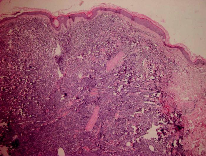 HE 40x. Kožní částice s difuzním lymfoidním infiltrátem v dermis a vyjádřenou Grenz zónou.