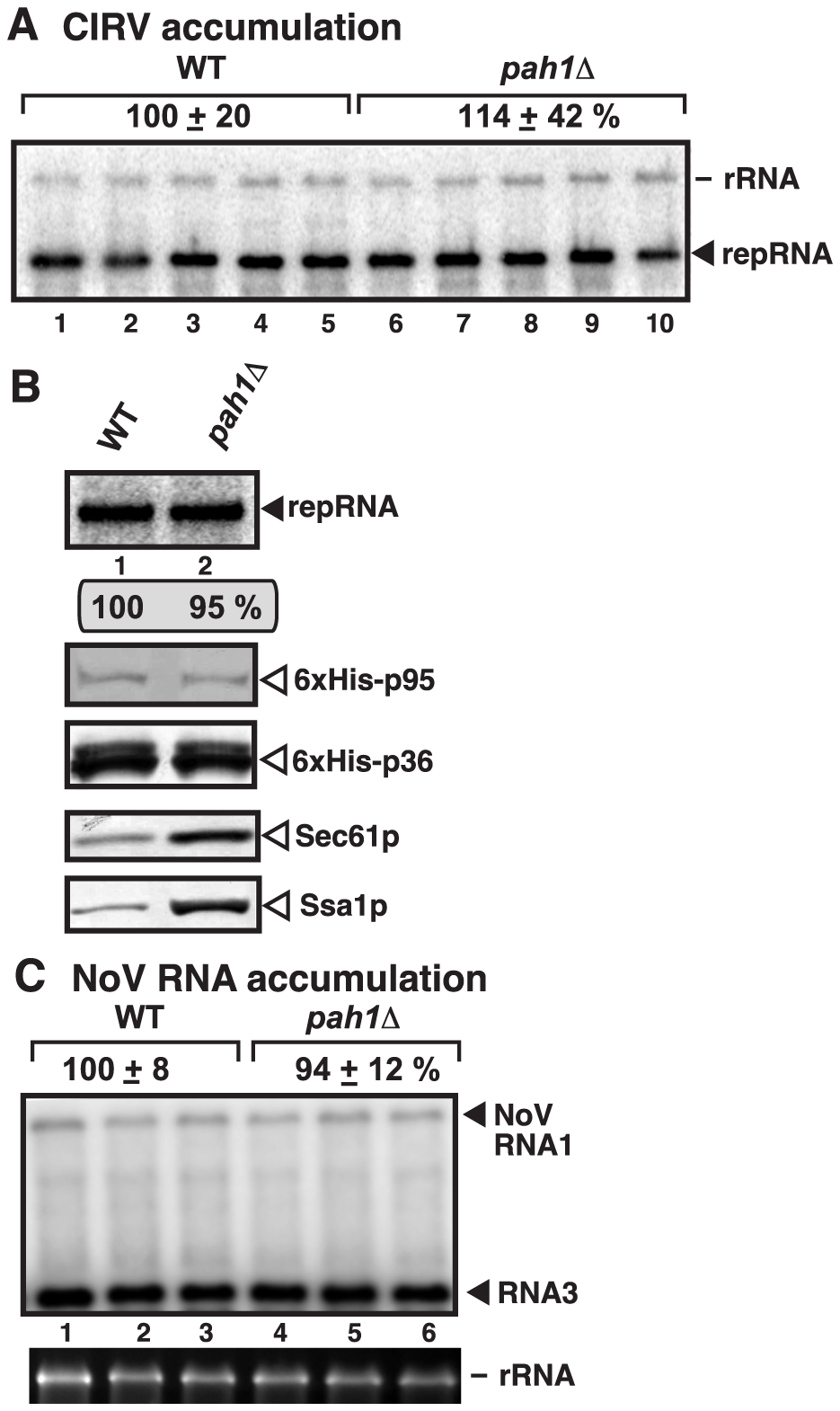 Deletion of <i>PAH1</i> does not affect the accumulation of CIRV and NoV RNAs in yeast.