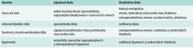 Charakteristické MRI nálezy na chrbtici u pacientov s axiálnou SpA. Upravené podľa [10]
